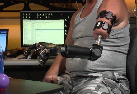 Armprothese der neusten Generation
